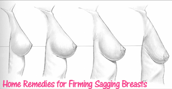 north-cyprus-sagging-breasts-remedies