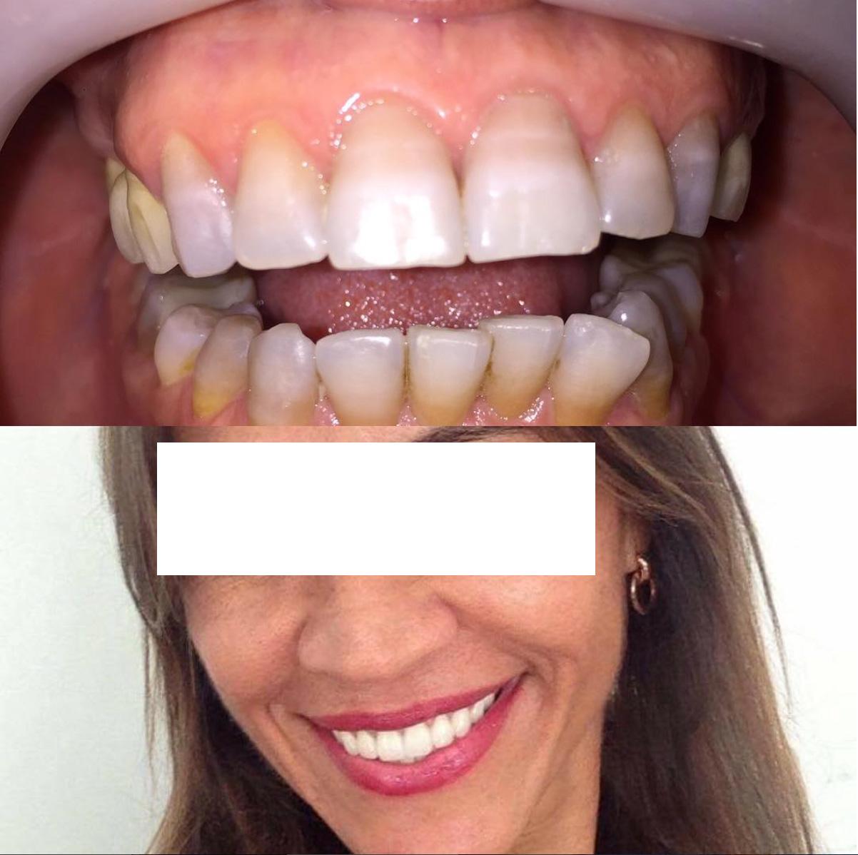 Harun Yildirim Dental Surgeon